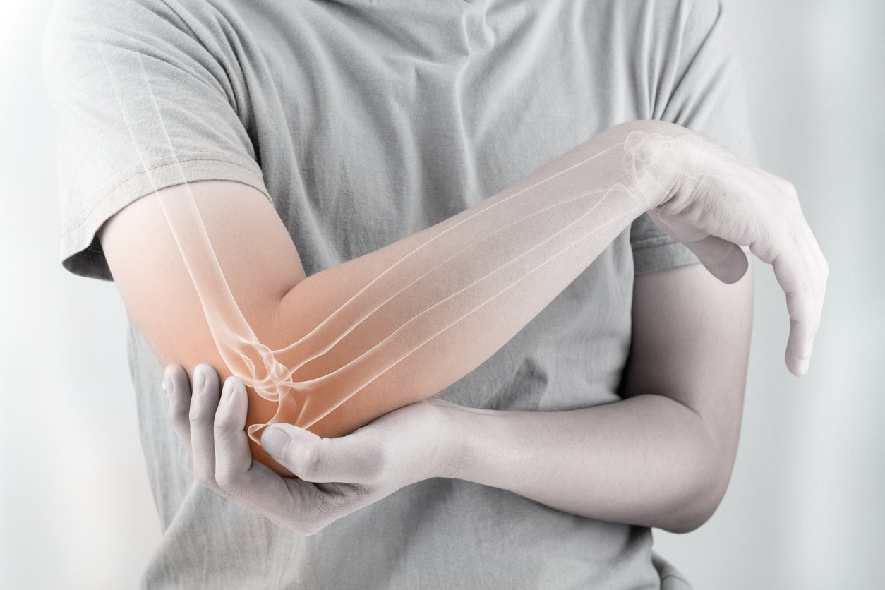 5. Elleboog-, onderarm-, pols- en handklachten
